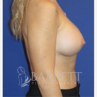18-24 year old woman treated with Breast Implants 3605811