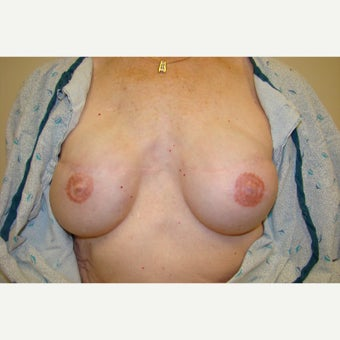 45-54 year old woman treated with Breast Reconstruction after 1715958