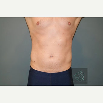 25-34 year old man treated with SculpSure after 2896063