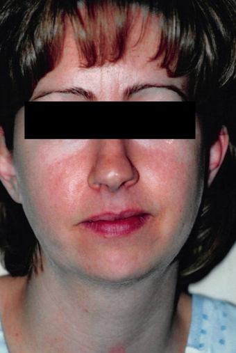 35-44 year old woman treated with Buccal Fat Removal before 1588055