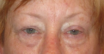 Upper and lower lid blepharoplasty, ptosis repair, chemical peel to lower lids before 875953