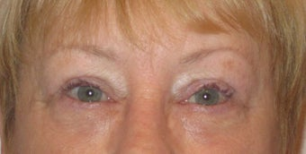 Upper and lower lid blepharoplasty, ptosis repair, chemical peel to lower lids after 875953