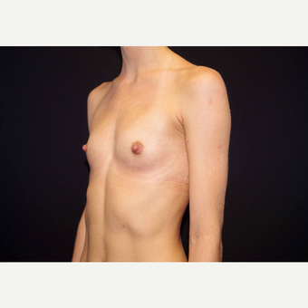 25-34 year old woman treated with Breast Implants before 3440989