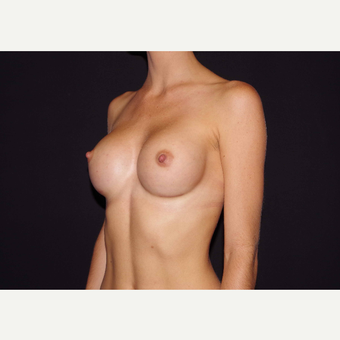 25-34 year old woman treated with Breast Implants after 3440989