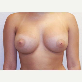 Woman treated with Sientra Breast Implants after 3163512