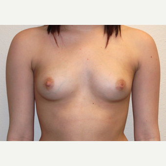 Woman treated with Sientra Breast Implants before 3163512