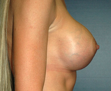 Breast Implants after 3545090