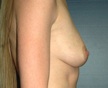 Breast Implants before 3545090