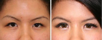 Double Eyelid Before & After Photos  before 1230261