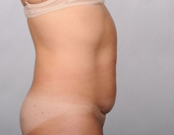 No Drain Tummy Tuck 779899