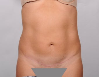 No Drain Tummy Tuck after 779899