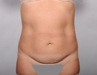 No Drain Tummy Tuck before 779899