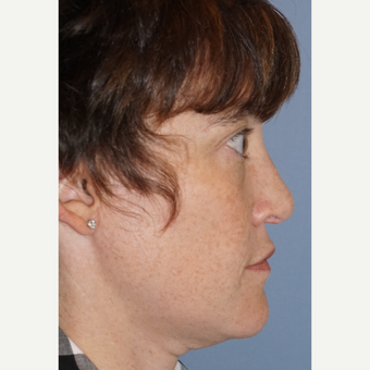 35-44 year old woman treated with Rhinoplasty after 3632376