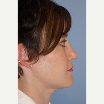 35-44 year old woman treated with Rhinoplasty before 3632376