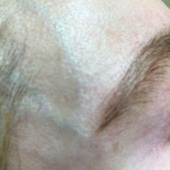 55-64 year old woman treated with Vein Treatment before 3079396