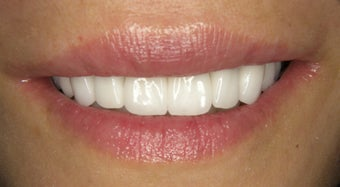 Smile Makeover correction of dark metal crowns with eMAX crowns and Veneers after 752232