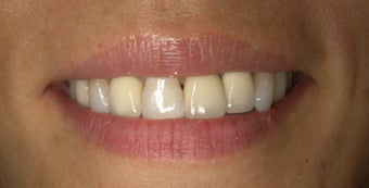 Smile Makeover correction of dark metal crowns with eMAX crowns and Veneers before 752232