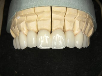 Smile Makeover correction of dark metal crowns with eMAX crowns and Veneers 752232