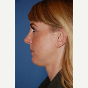 25-34 year old woman treated with Rhinoplasty after 3781996