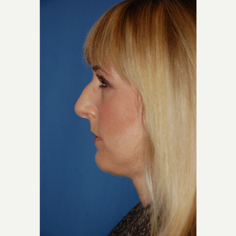 25-34 year old woman treated with Rhinoplasty before 3781996