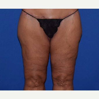 45-54 year old woman treated with Thigh Lift after 3755275