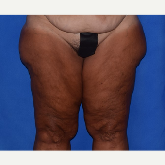 45-54 year old woman treated with Thigh Lift before 3755275