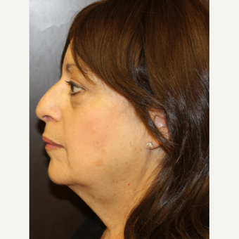 45-54 year old woman treated with Facelift before 3813486