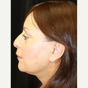 45-54 year old woman treated with Facelift after 3813486