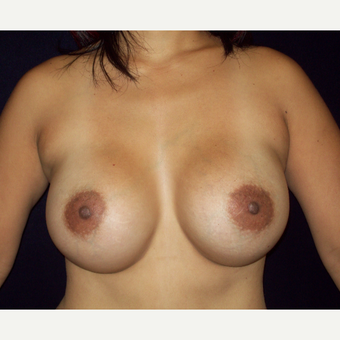 25-34 year old woman treated with Natrelle Silicone Breast Augmentation after 3143270