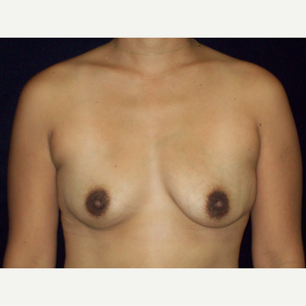 25-34 year old woman treated with Natrelle Silicone Breast Augmentation before 3143270