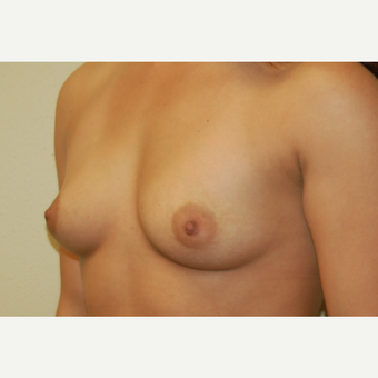 18-24 year old woman treated with Breast Implants before 3192506