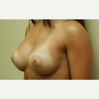 18-24 year old woman treated with Breast Implants after 3192506