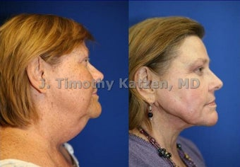 Neck liposuction and TCA chemical peel before 667236