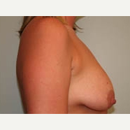 25-34 year old woman treated with Breast Lift before 3339062
