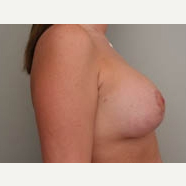 25-34 year old woman treated with Breast Lift after 3339062