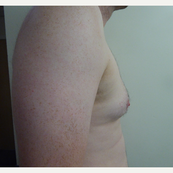 35-44 year old man treated with Male Breast Reduction before 3501827