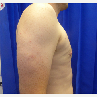 35-44 year old man treated with Male Breast Reduction after 3501827