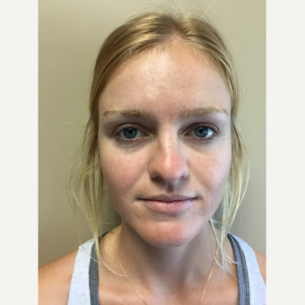 18-24 year old woman treated with Rhinoplasty before 3180296