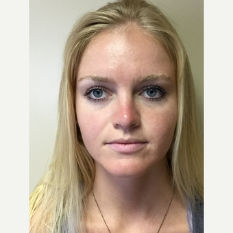 18-24 year old woman treated with Rhinoplasty after 3180296