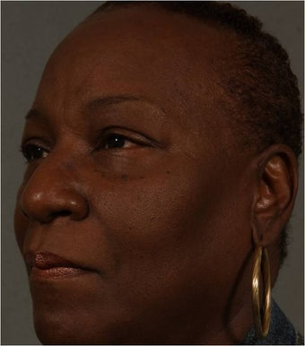 59 Year Old African American female after Juvederm Voluma used to fill her cheeks and NEW use- nasolabial folds after 1344888