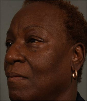 59 Year Old African American female after Juvederm Voluma used to fill her cheeks and NEW use- nasolabial folds before 1344888