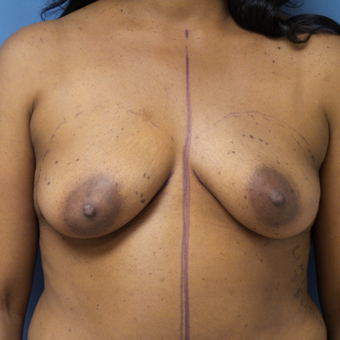 45-54 year old woman treated with Breast Augmentation before 3026661