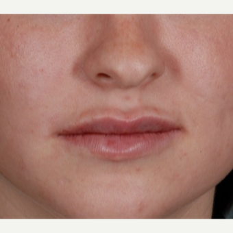 25-34 year old woman treated with Liquid Facelift