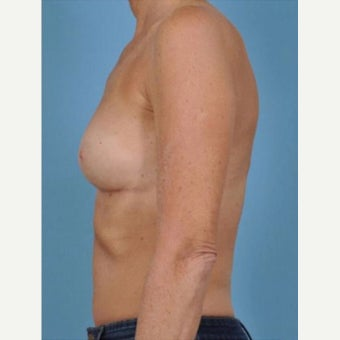 45-54 year old woman treated with Breast Fat Transfer after 2286243