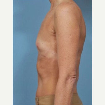 45-54 year old woman treated with Breast Fat Transfer before 2286243