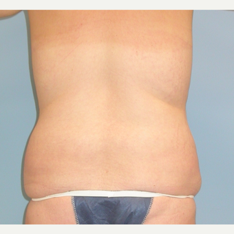 25 year old woman treated with Liposuction of her love handles (flanks) before 3339933