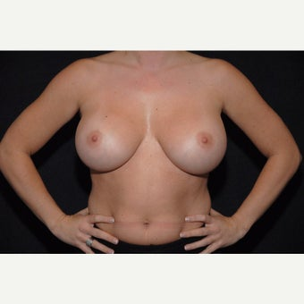 25-34 year old woman treated with Breast Implant Removal before 2073485