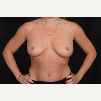 25-34 year old woman treated with Breast Implant Removal after 2073485
