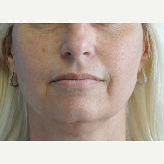 45-54 year old woman treated with Lip Augmentation before 3219501