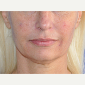 45-54 year old woman treated with Lip Augmentation after 3219501
